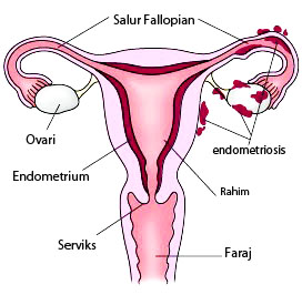 endometriosis03