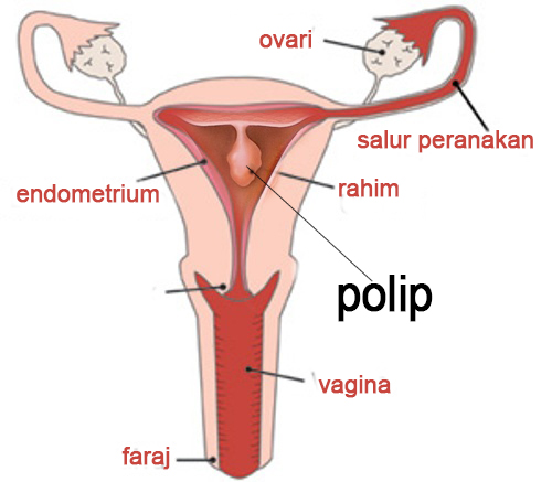 polip-endo