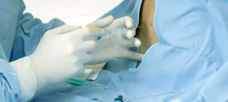 epidural-anaesthesia