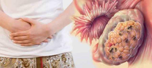 kanser-ovari