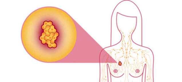 kanser-payudara