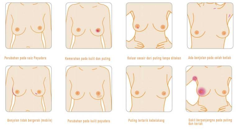 gejala-kanser-payudara