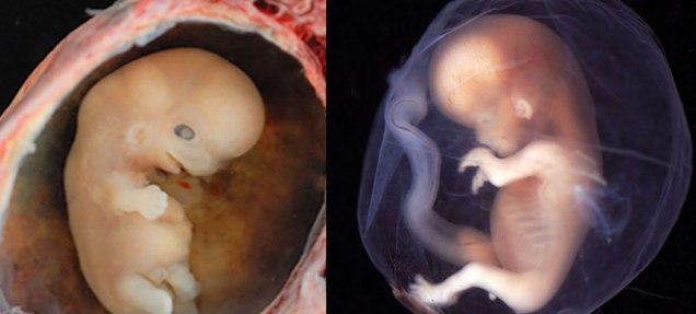 fetus.jpg