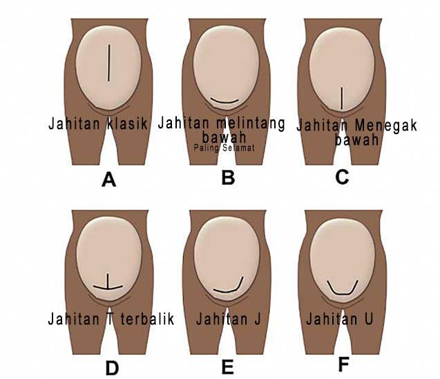 Jahitan-c-section.jpg