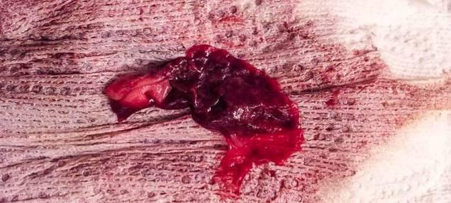 gumpalan-darah