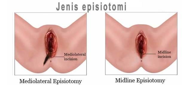 jenis-episiotomi